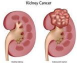 ESMO (Sociedad Europea de Oncología Médica): detección temprana de células  renales canceríjenas hereditarias, presentado en el congreso anual de la Sociedad Europea de Oncología Médica - RSi Communications